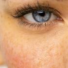 Пигментное пятно - признаки-сигналы, когда нужно обратиться к врачу.