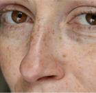 Пигментные пятна и старение лица - рекомендации как отложить время их появления?