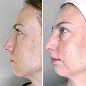 Маска С- Инфьюжен антиоксидантная для лица с витамином С / DermaQuest / набор с семплами - фото 6691